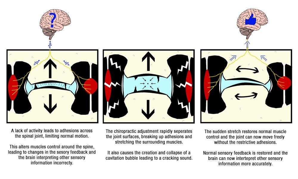 Spinal adjustment models